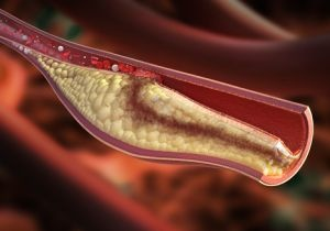 動脈硬化を乳酸菌で改善(shutterstock.com)
