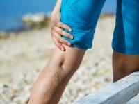 下肢静脈瘤を食事で改善できる!(depositphotos.com)