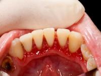 歯周病もアルツハイマー病の原因に(depositphotos.com)