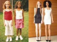 見た目も性格も完全に異なる双子姉妹。二人種誕生はどうやって起こる?(イギリス)