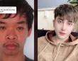 就活のために顔を大幅に改造した男性の整形ビフォア・アフター(ベトナム)