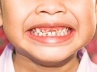 「生活困難世帯」の子の虫歯は2倍も多い(shutterstock.com)