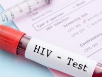 HIV感染は「死の病」ではないなったが……(shutterstock.com)