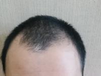 薄毛対策を始めている男子大学生は約1割! 「遺伝が心配」