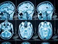 脳の異常血管網が「タバコの煙」のようにモヤモヤして見える(shutterstock.com)