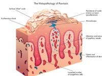 「乾癬」はメタボの男性が発症しやすい(depositphotos.com)
