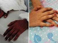 肌の色が違う男性からの両手移植手術を受けた女性、手の色が自身の色に変化(インド)
