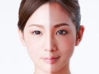 日焼けのダメージは毎年蓄積して、老け顔&肌ボロボロの原因に……