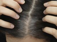 白髪染めで白髪が倍増するって本当?(depositphotos.com)