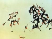 電子顕微鏡で見た破傷風菌 画像は「Wikipedia」より引用
