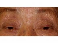 眼瞼下垂の症例
