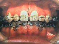 歯列矯正の例