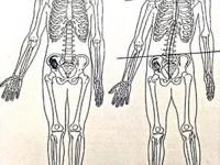 左が正常な骨格 右が歪んだ骨格
