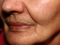 深い「ほうれい線」も改善する皮膚再生治療とは?(depositphotos.com)