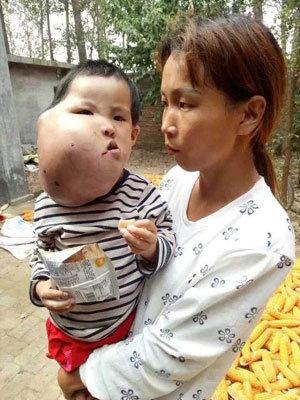 顔面を巨大な腫瘍に侵された3歳の女児(新浪新聞)