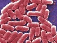 コリスチン耐性遺伝子を持つ多剤耐性菌MCR-1(CDC/Janice Haney Carr)