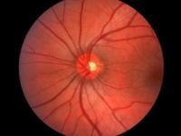 糖尿病網膜症は高血糖が網膜内の血管を傷つけ視力の喪失を引き起こす糖尿病の合併症(depositphotos.com)