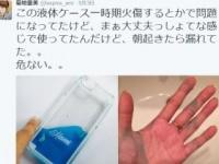 青く染まった菊池さんの手のひら(菊地さんのツイッターより)