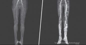 脚に灼熱の痛みを感じた女性、中世に流行した「麦角菌病」と診断される