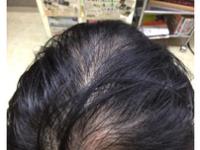 女子にも急増中!?プロの美容師が本気で【発毛コース】をメニュー化してみたらどうなるか?