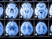 急性アルコール中毒の患者で頭部外傷がある場合には検査が必要(shutterstock.com)