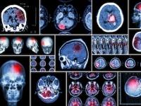 脳梗塞は「夏」に最も多い(depositphotos.com)