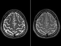 宇宙に長期滞在した宇宙飛行士の脳のMRI画像(左:出発前 右:地球帰還後)(出典=「Effects of Spaceflight on Astronaut Brain Structure as Indicated on MRI」)