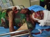 病院に搬送された女性。まるで爆撃を受けたかのような光景だ(東網より)