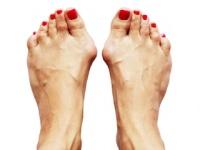 外反母趾の原因は靴ではなく歩き方(depositphotos.com)