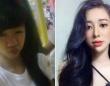 恋人とつらい別れをした女性、19歳で美容整形手術を受け現在の姿をシェア。後悔はしていない(ベトナム)