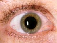 目の病気にはどんなサプリが有効?(depositphotos.com)