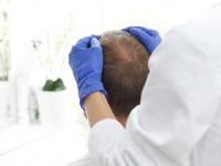 帽子の裏側に仕込んでこっそりハゲ治療にハゲめるデバイスが開発される(米研究)