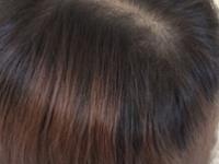 髪質もカラーも諦めたくない!【リタッチ】&【髪質改善】のススメ