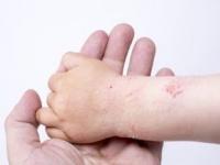 乳酸菌はアトピー性皮膚炎の改善にも効果が(shutterstock.com)
