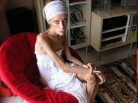 """28歳で亡くなった""""痩せすぎモデル""""イザベル・カロさん 画像は「Wikipedia」より"""
