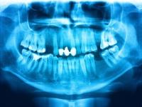 閉経後に「歯周病」になると「発がんリスク」が約14%も上昇する(depositphotos.com)