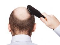 男性型脱毛症(AGA)や若白髪は冠動脈疾患のリスクに(depositphotos.com)